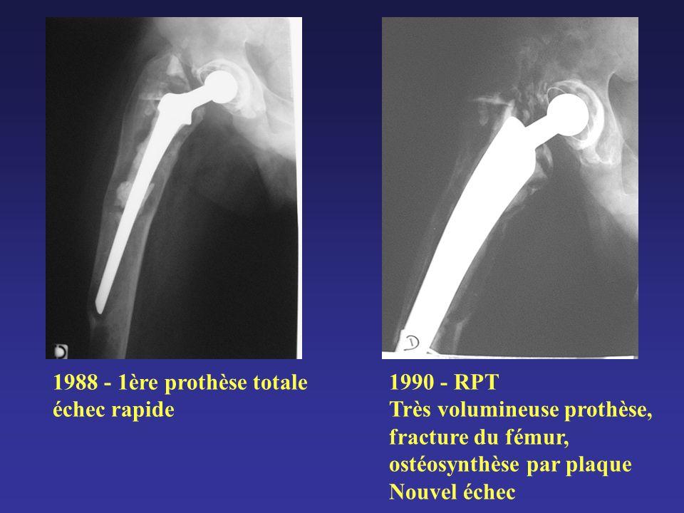 1988 - 1ère prothèse totale échec rapide