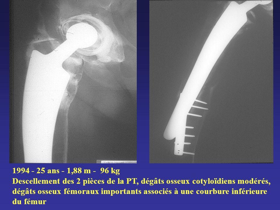 1994 - 25 ans - 1,88 m - 96 kg Descellement des 2 pièces de la PT, dégâts osseux cotyloïdiens modérés, dégâts osseux fémoraux importants associés à une courbure inférieure du fémur