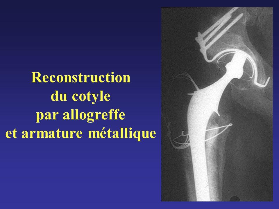 Reconstruction du cotyle par allogreffe et armature métallique