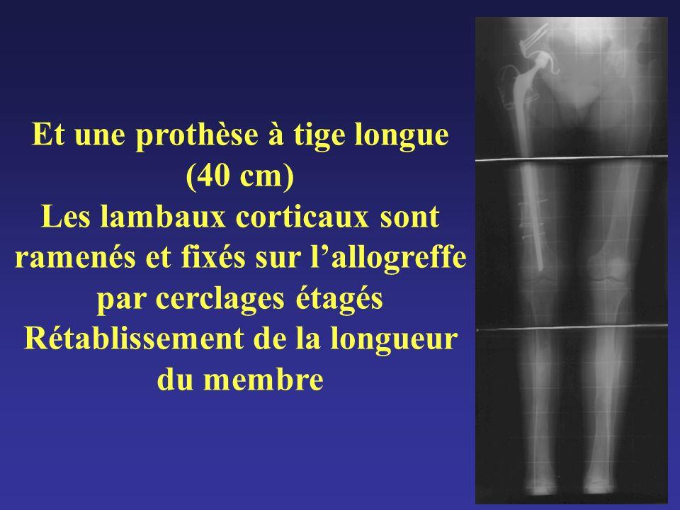 Et une prothèse à tige longue (40 cm) Les lambaux corticaux sont ramenés et fixés sur l'allogreffe par cerclages étagés Rétablissement de la longueur du membre