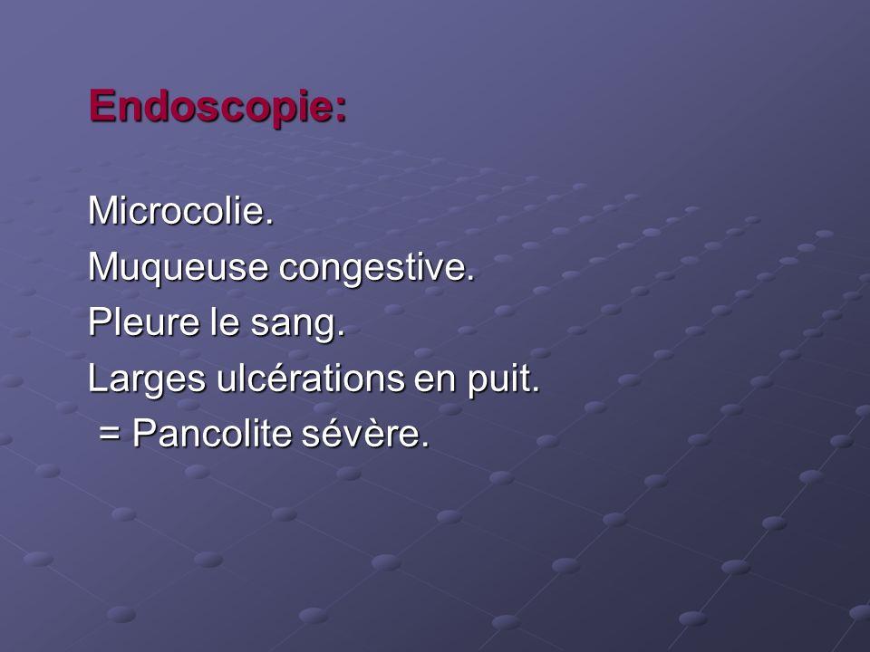 Endoscopie: Microcolie. Muqueuse congestive. Pleure le sang.