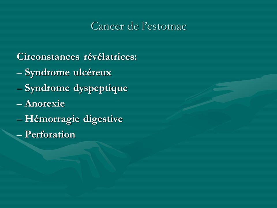 Cancer de l'estomac Circonstances révélatrices: – Syndrome ulcéreux