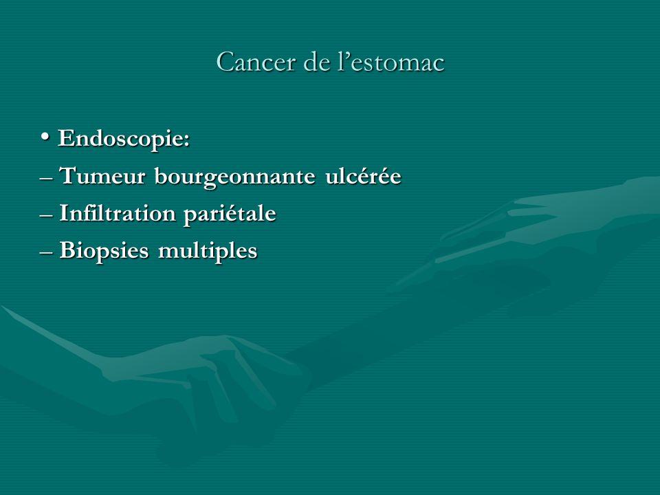 Cancer de l'estomac • Endoscopie: – Tumeur bourgeonnante ulcérée