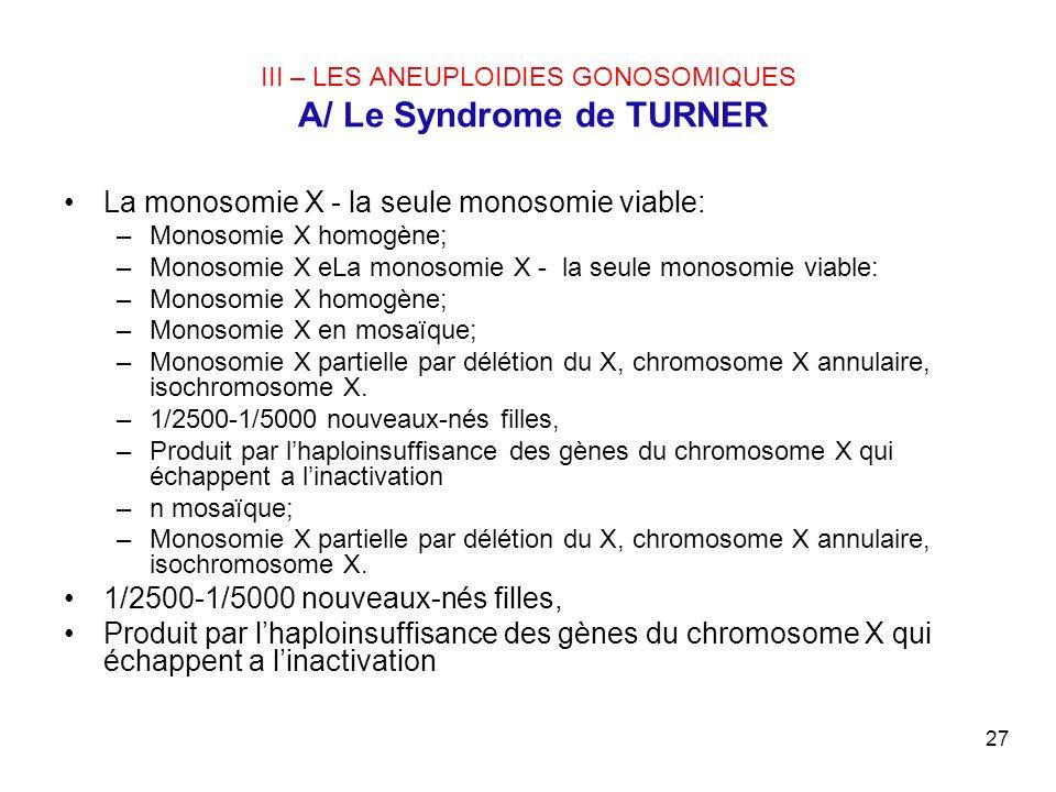 III – LES ANEUPLOIDIES GONOSOMIQUES A/ Le Syndrome de TURNER