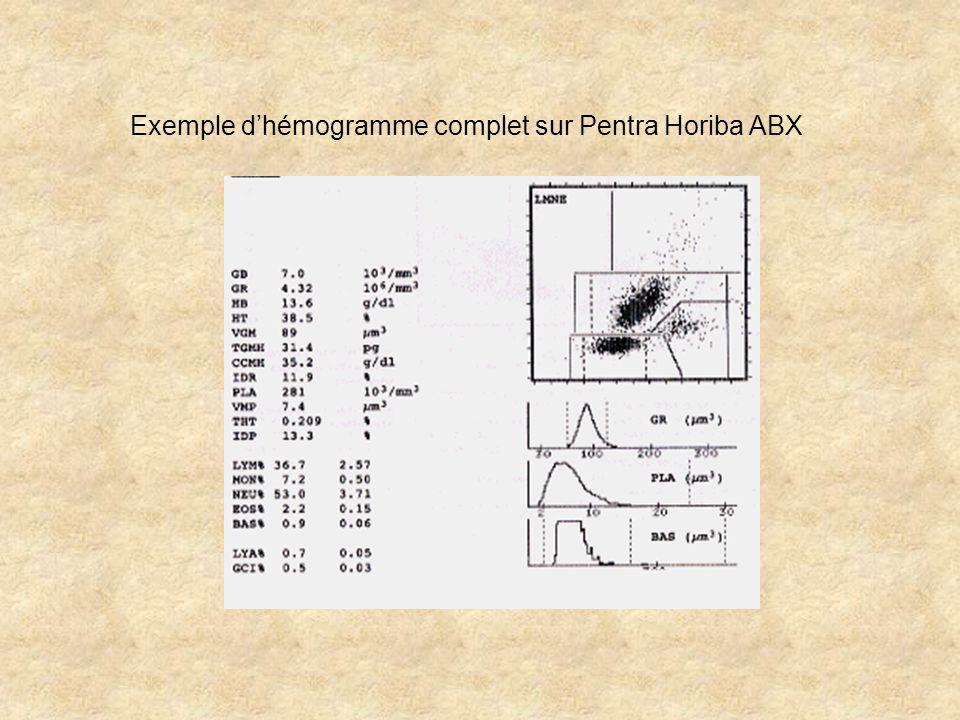 Exemple d'hémogramme complet sur Pentra Horiba ABX