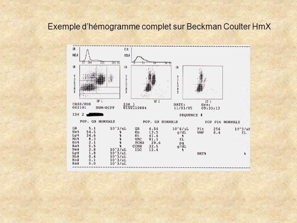 Exemple d'hémogramme complet sur Beckman Coulter HmX