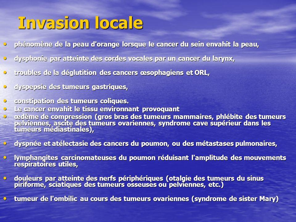 Invasion locale phénomène de la peau d orange lorsque le cancer du sein envahit la peau,