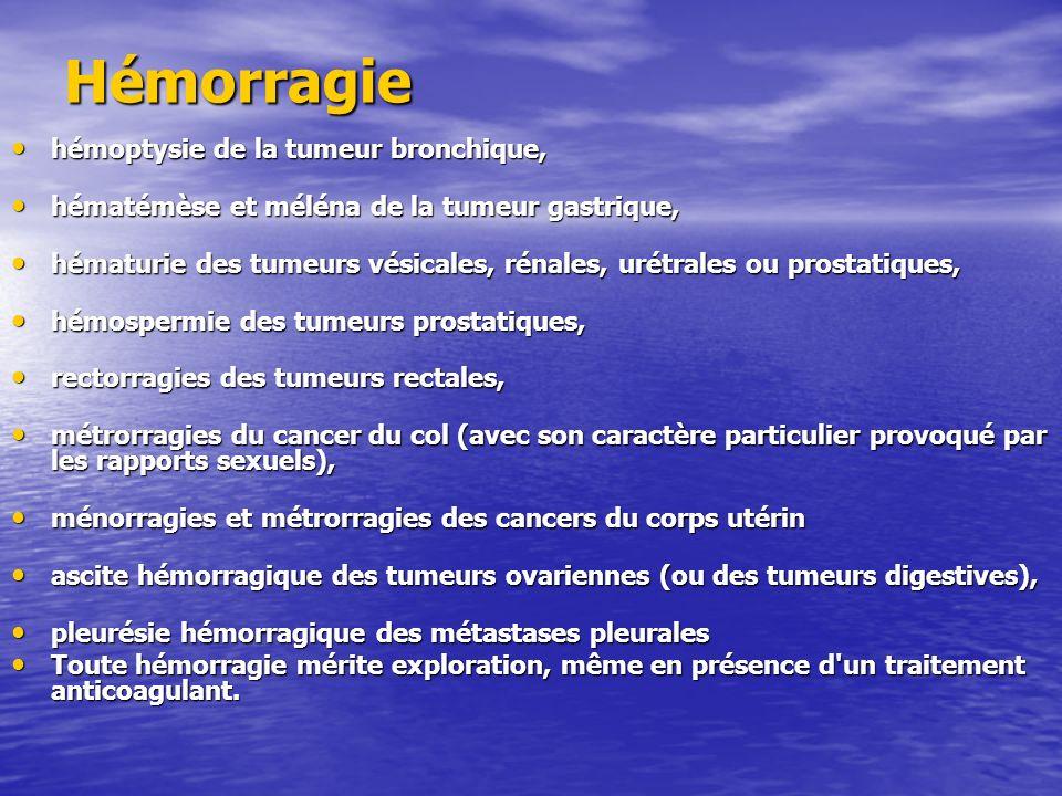 Hémorragie hémoptysie de la tumeur bronchique,