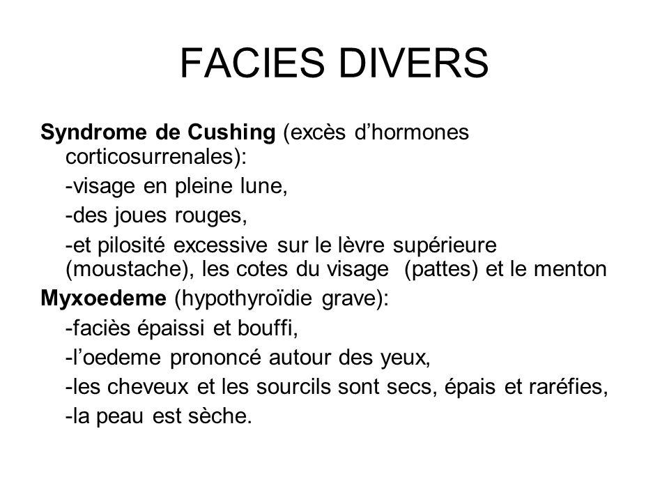 FACIES DIVERS Syndrome de Cushing (excès d'hormones corticosurrenales): -visage en pleine lune, -des joues rouges,