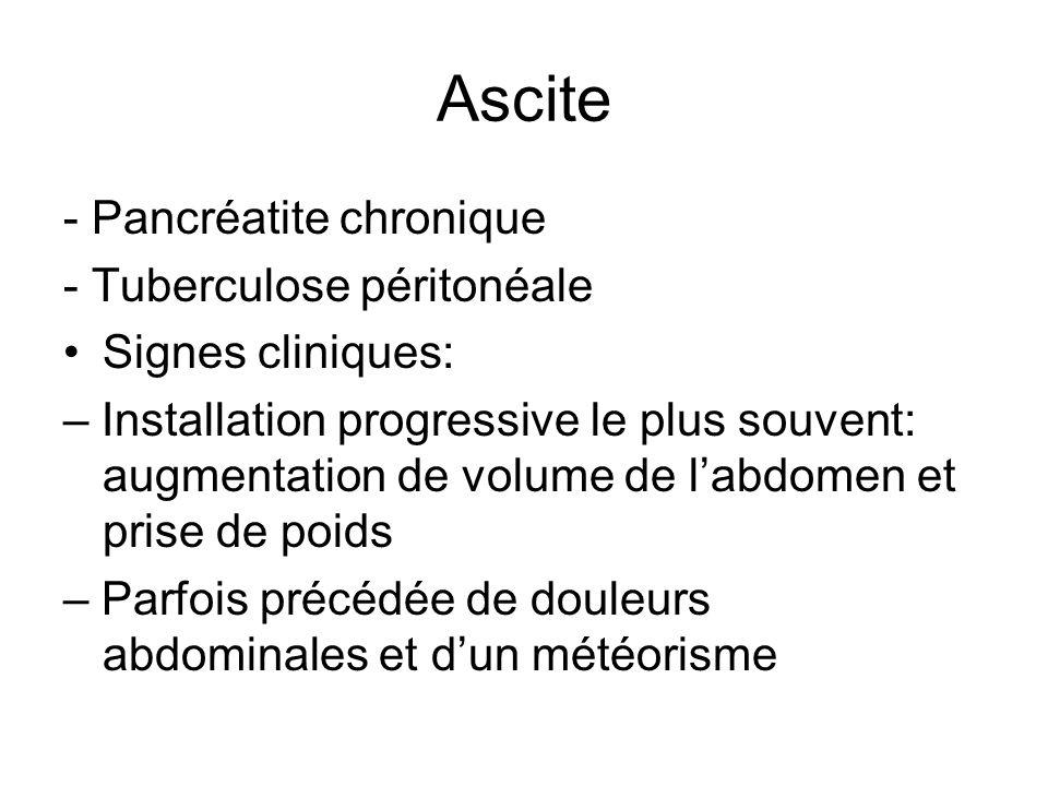 Ascite - Pancréatite chronique - Tuberculose péritonéale