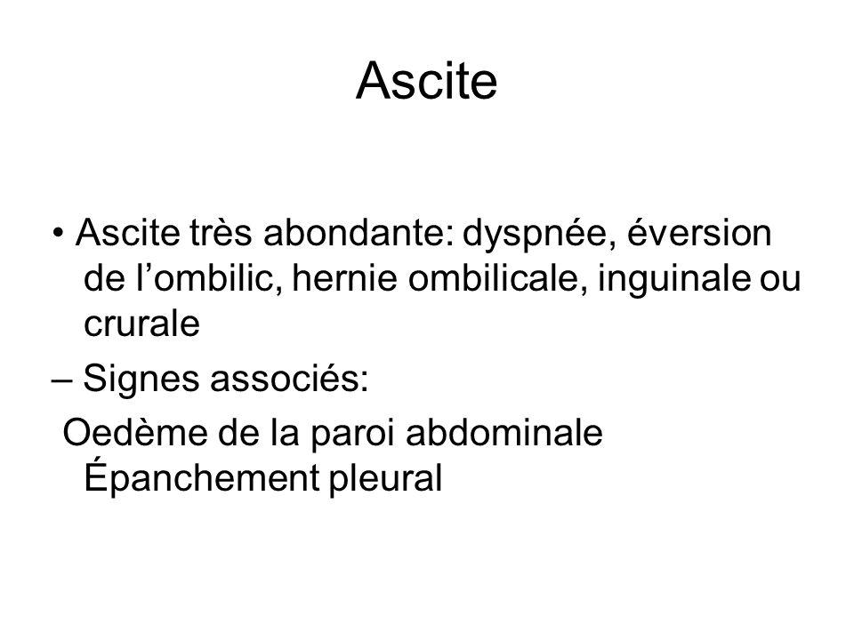 Ascite • Ascite très abondante: dyspnée, éversion de l'ombilic, hernie ombilicale, inguinale ou crurale.