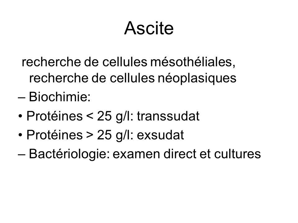Ascite recherche de cellules mésothéliales, recherche de cellules néoplasiques. – Biochimie: • Protéines < 25 g/l: transsudat.