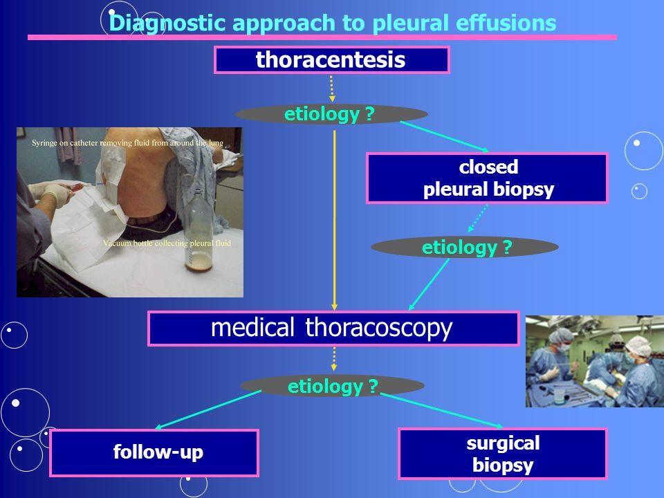 Diagnostic approach to pleural effusions