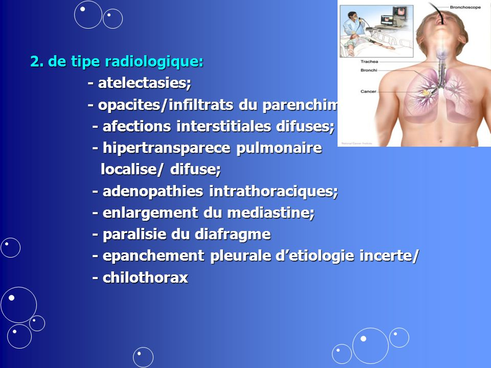 2. de tipe radiologique: - atelectasies; - opacites/infiltrats du parenchim; - afections interstitiales difuses;