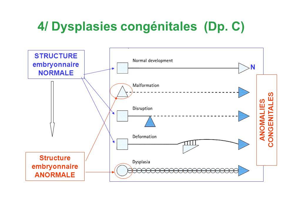4/ Dysplasies congénitales (Dp. C)