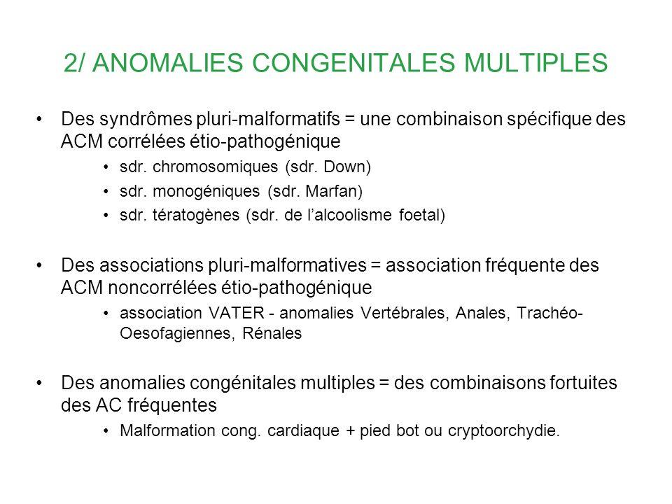2/ ANOMALIES CONGENITALES MULTIPLES