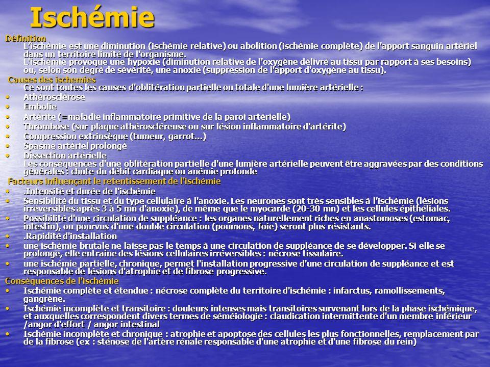 Ischémie