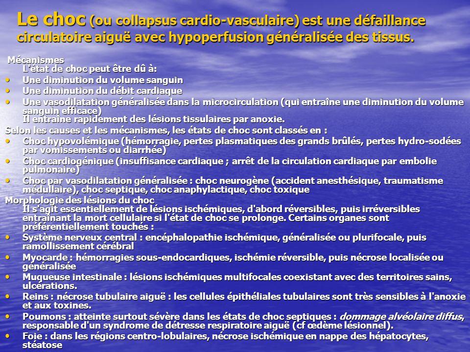 Le choc (ou collapsus cardio-vasculaire) est une défaillance circulatoire aiguë avec hypoperfusion généralisée des tissus.