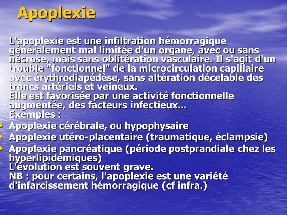 Apoplexie