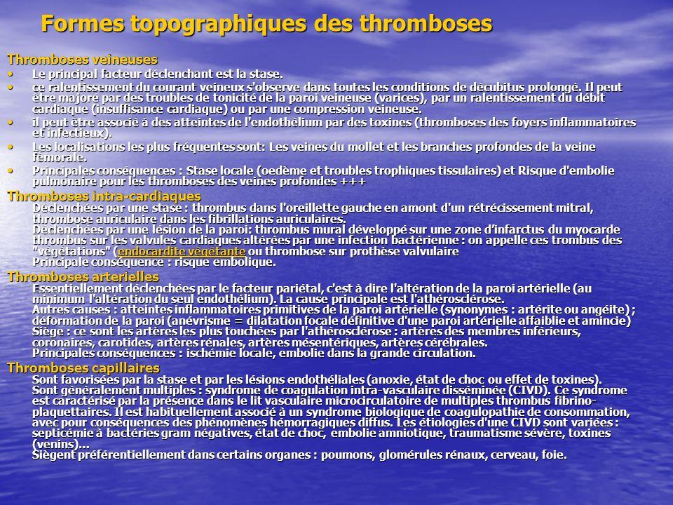Formes topographiques des thromboses