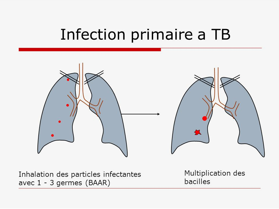 Infection primaire a TB