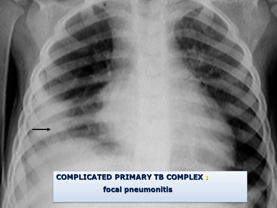 COMPLICATED PRIMARY TB COMPLEX :