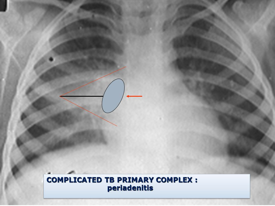 COMPLICATED TB PRIMARY COMPLEX :