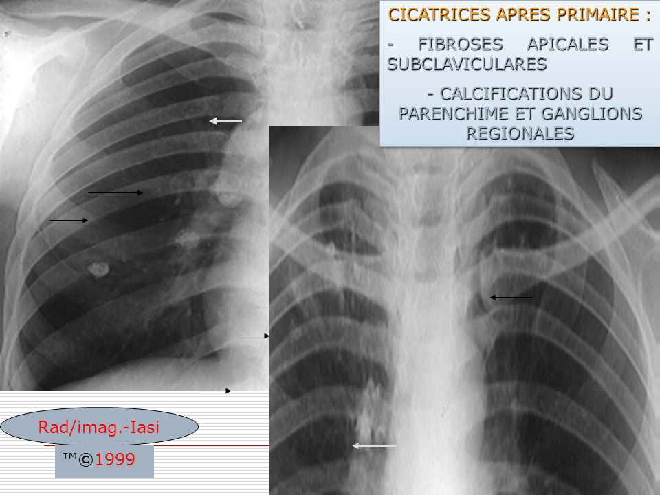 CICATRICES APRES PRIMAIRE : - FIBROSES APICALES ET SUBCLAVICULARES
