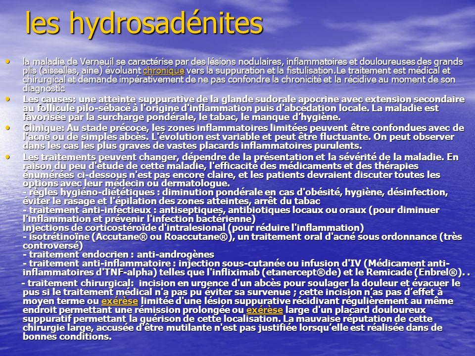 les hydrosadénites