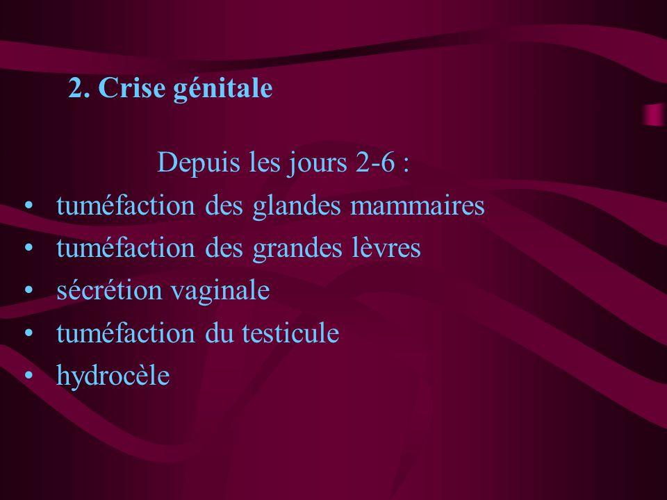 2. Crise génitale Depuis les jours 2-6 : tuméfaction des glandes mammaires. tuméfaction des grandes lèvres.