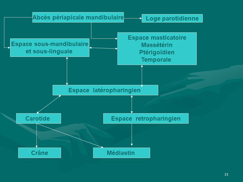Abcès périapicale mandibulaire Loge parotidienne