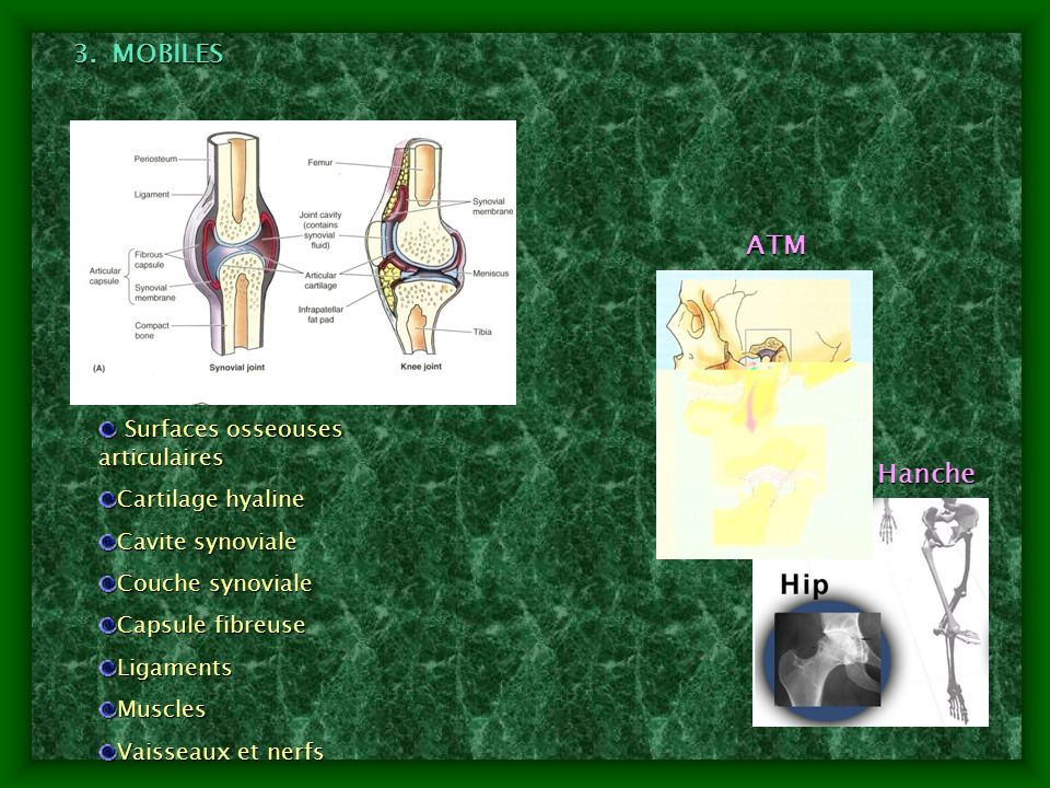 MOBILES ATM Hanche Surfaces osseouses articulaires Cartilage hyaline