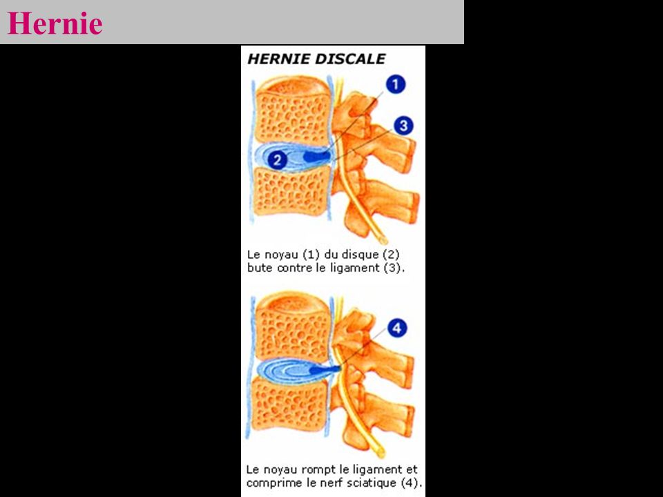 Hernie