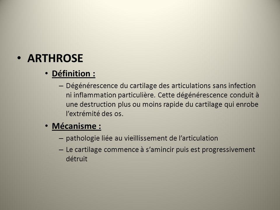 ARTHROSE Définition : Mécanisme :
