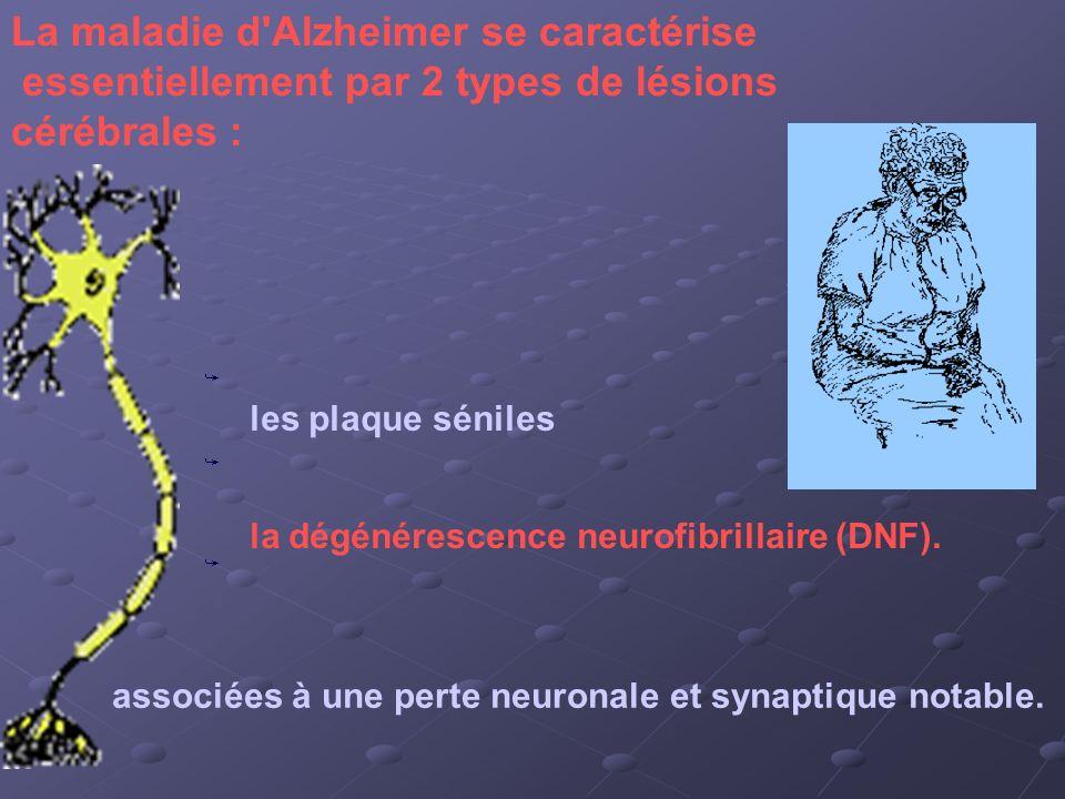 La maladie d Alzheimer se caractérise