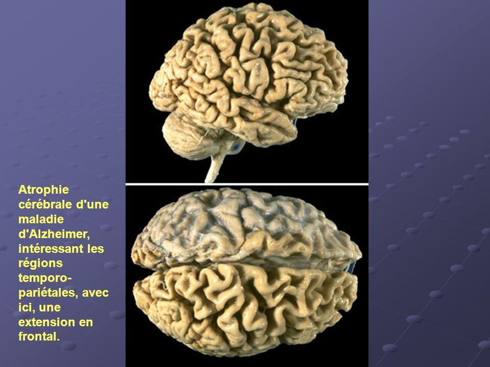 Atrophie cérébrale d une maladie d Alzheimer, intéressant les régions temporo-pariétales, avec ici, une extension en frontal.