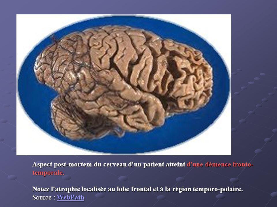 Aspect post-mortem du cerveau d un patient atteint d une démence fronto-temporale.