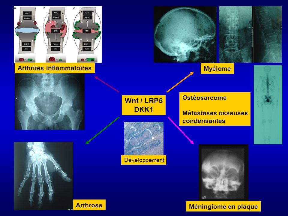 Wnt / LRP5 DKK1 Arthrites inflammatoires Myélome Ostéosarcome