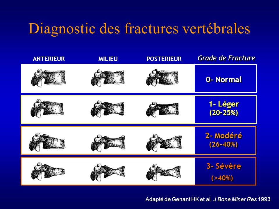 Diagnostic des fractures vertébrales