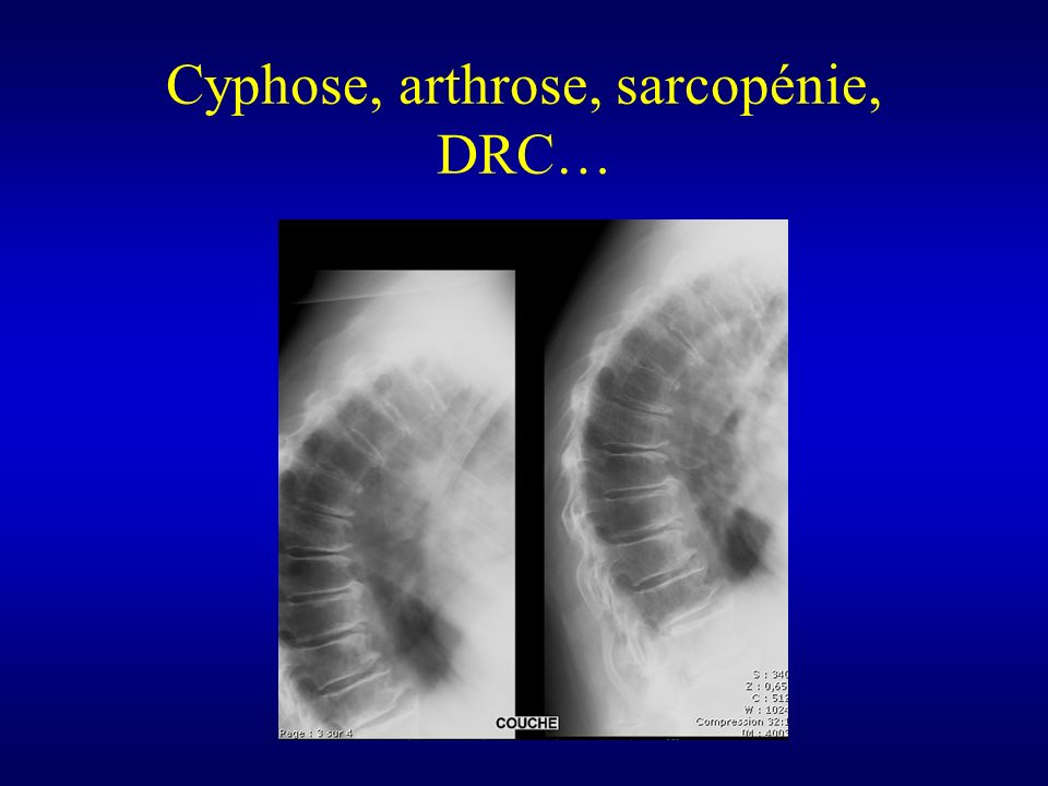 Cyphose, arthrose, sarcopénie, DRC…