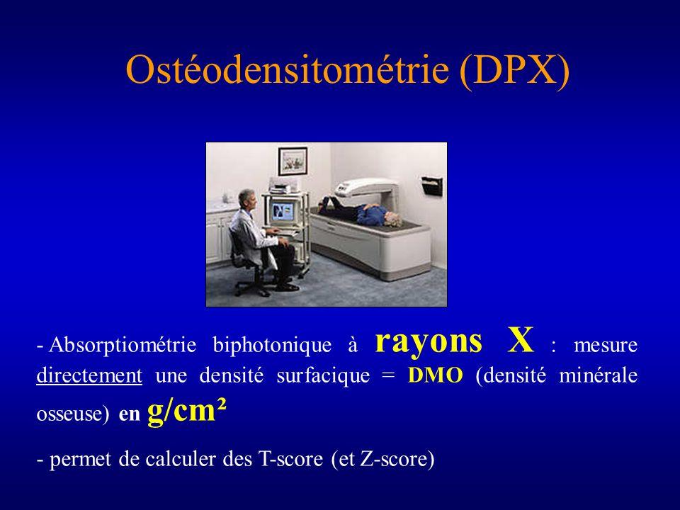 Ostéodensitométrie (DPX)