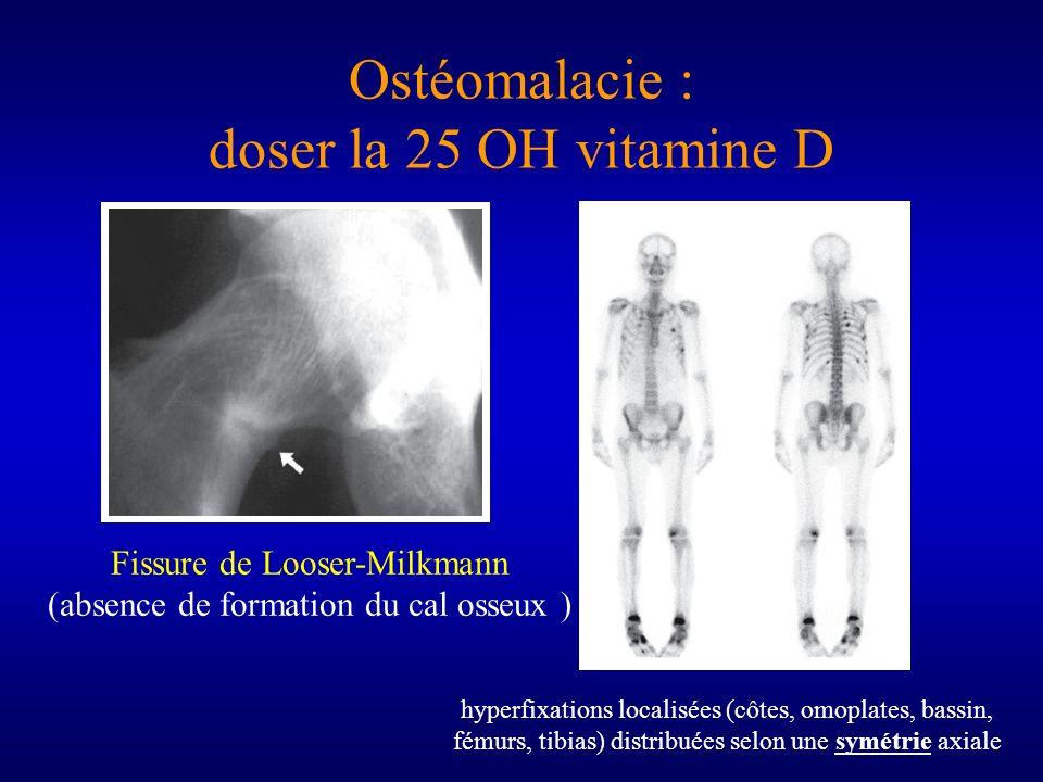 Ostéomalacie : doser la 25 OH vitamine D