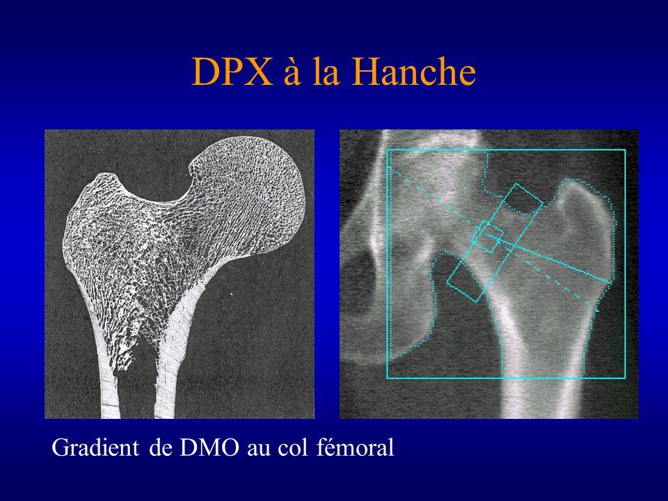 DPX à la Hanche Gradient de DMO au col fémoral