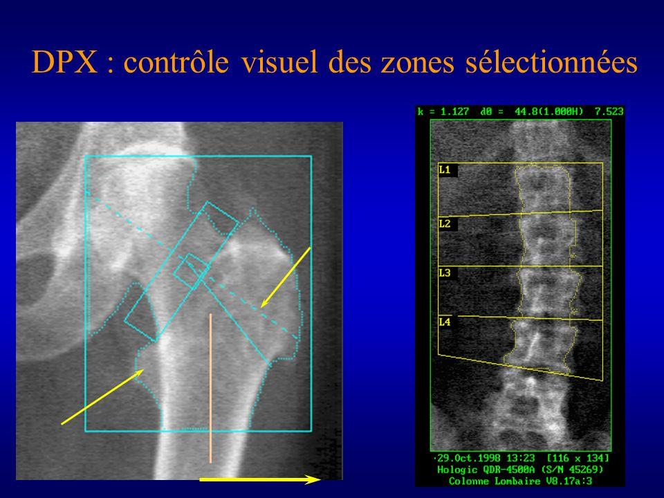 DPX : contrôle visuel des zones sélectionnées