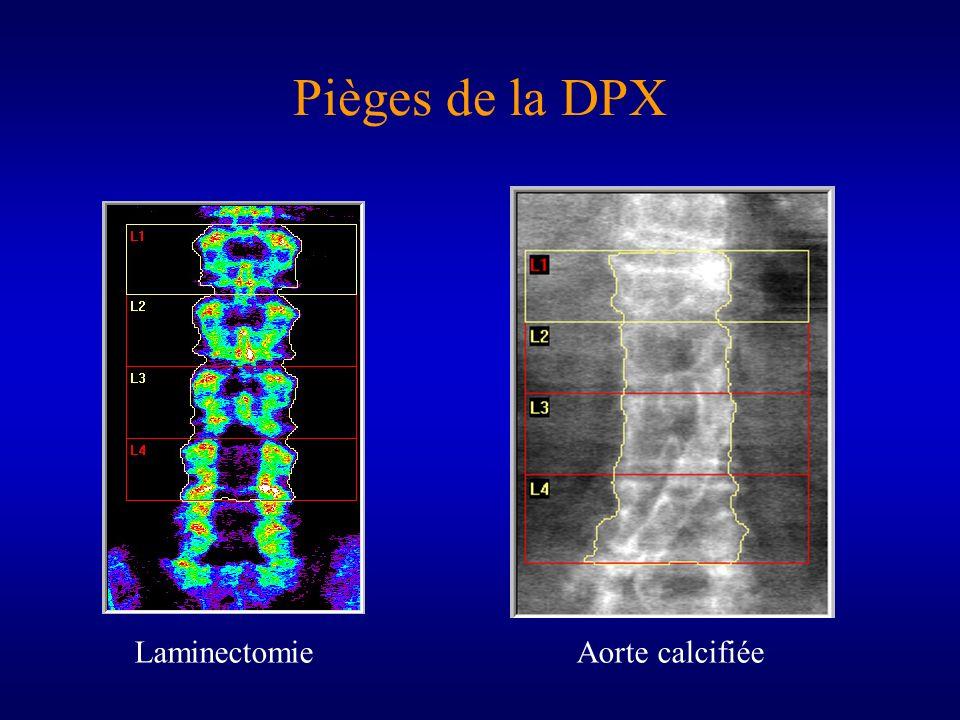 Pièges de la DPX Laminectomie Aorte calcifiée