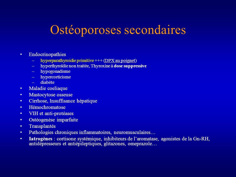 Ostéoporoses secondaires