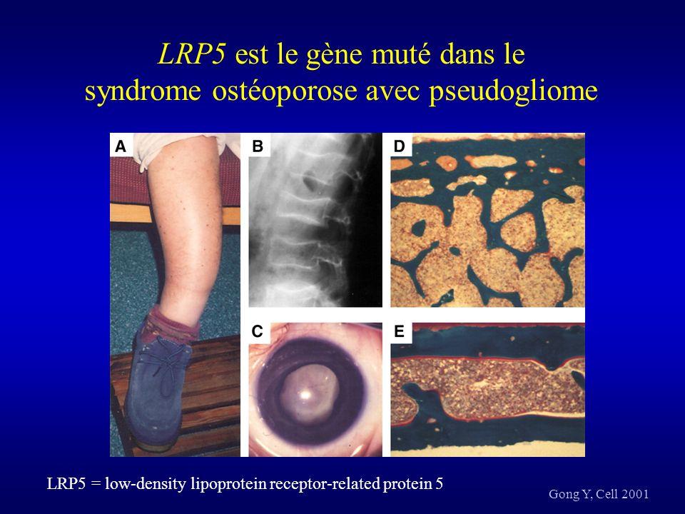 LRP5 est le gène muté dans le syndrome ostéoporose avec pseudogliome