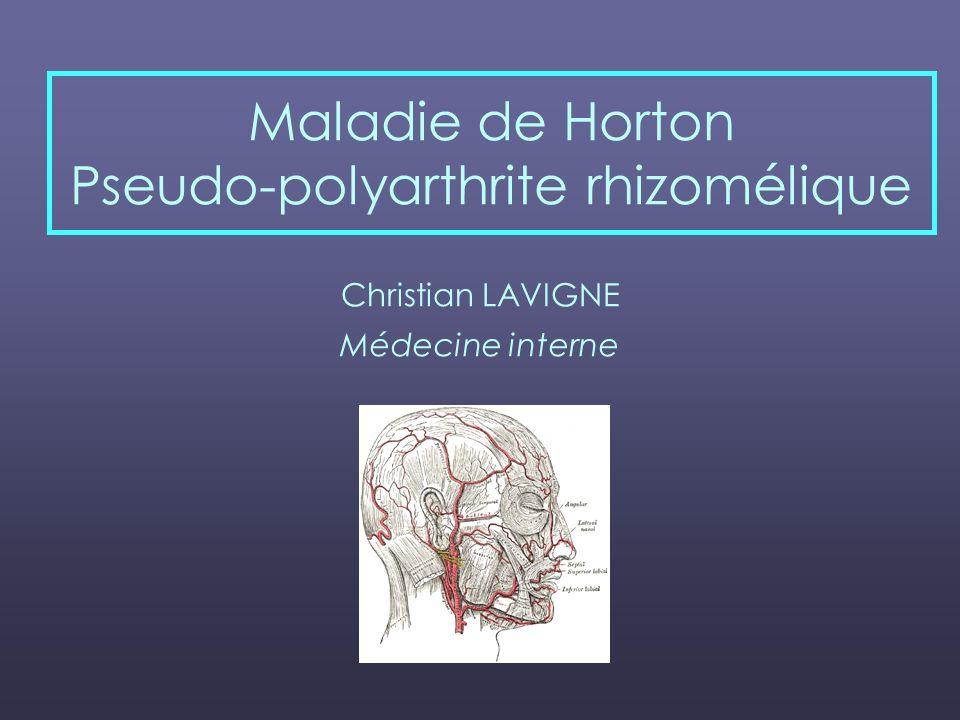 Maladie de Horton Pseudo-polyarthrite rhizomélique