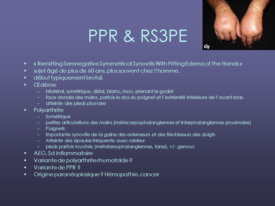 PPR & RS3PE « Remitting Seronegative Symmetrical Synovitis With Pitting Edema of the Hands » sujet âgé de plus de 60 ans, plus souvent chez l'homme.