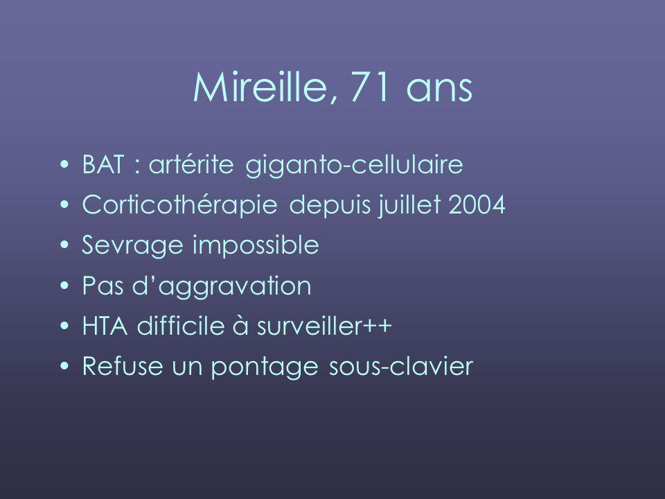 Mireille, 71 ans BAT : artérite giganto-cellulaire